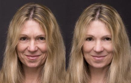 katrin feldmann kosmetik kosmetikbehandlungen